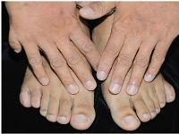 6 пальцев на руках и ногах