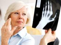 Женщина рассматривает рентген кисти руки