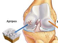 Изменения хрящевой ткани при артрозе
