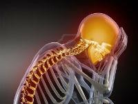 Головная боль при шейном остеохондрозе