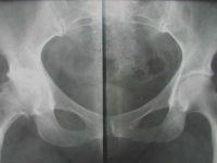 рентген поясницы