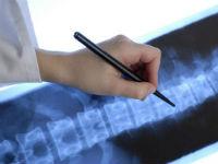 Рентгенограмма позвоночника