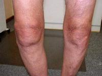 Деформация коленных суставов при остеоартрозе