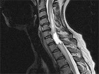 опухоль позвоночника на рентгене
