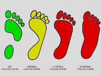 Отпечатки стопы