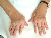 полиартрит пальцев