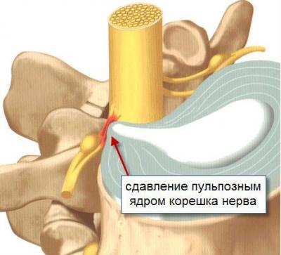 сдавление корешка нерва