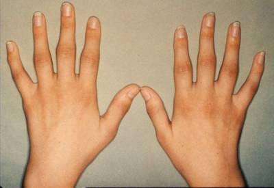 Ревматоидный артрит 1 стадии
