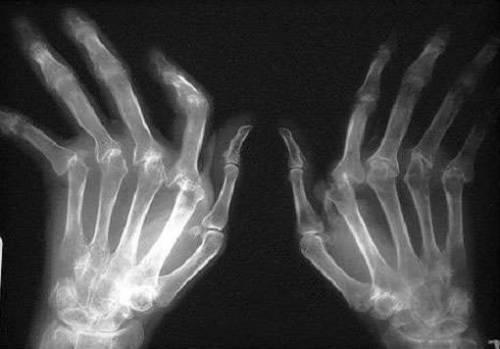 4 рентген-стадия ревматоидного артрита