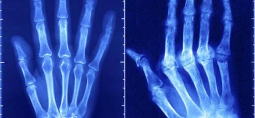 Артрит пальцев рук на рентгенограмме