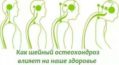 Влияние остеохондроза