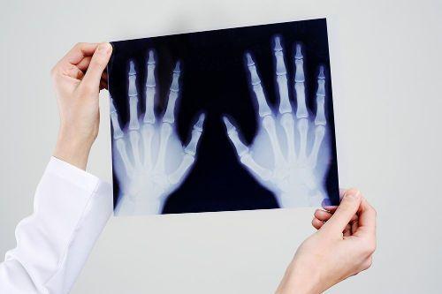 Рентген-снимок рук