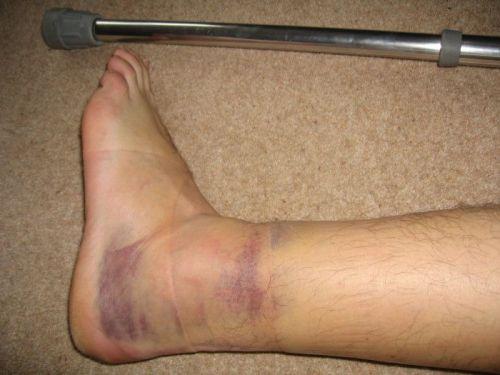 Травмирование голеностопа