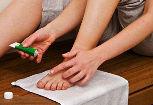 Нанесение мази на ногу