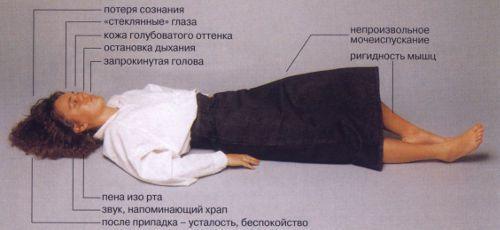 Обмороки с судорогами симптомы thumbnail