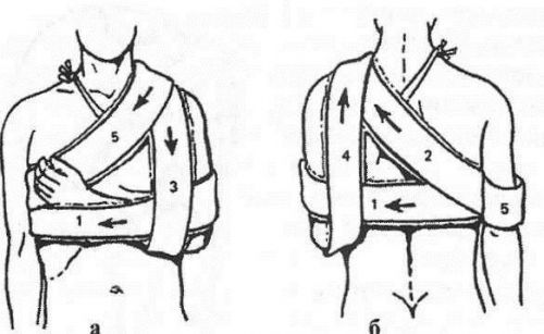 При ушибе плечевого сустава накладывают повязку колосовидную thumbnail