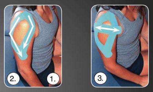 Тейпирование плеча