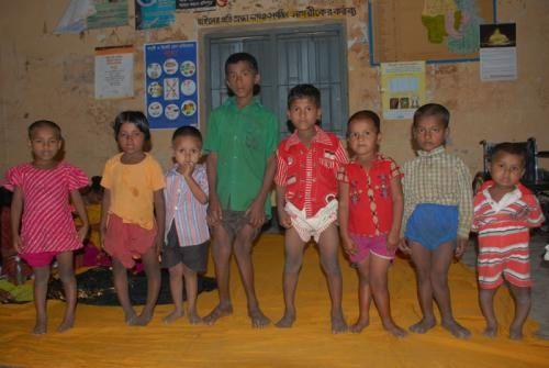 Дети с кривыми ногами