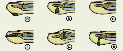 Что делать если опух и покраснел палец на руке thumbnail