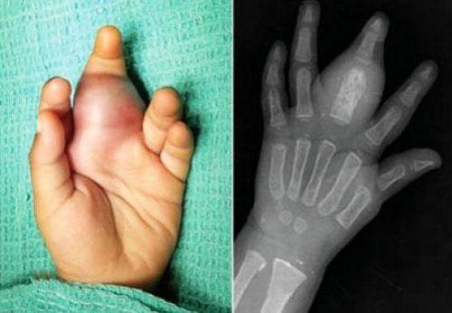 Опухоль пальца