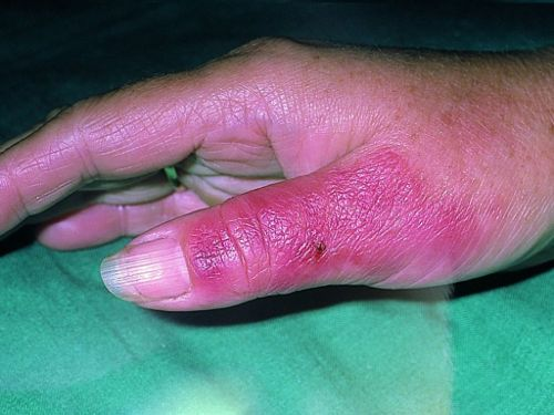 Рожистое воспаление пальца руки