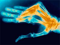полиартрит суставов руки
