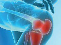 Повреждение коленного сустава