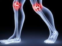 Боль в коленных суставах