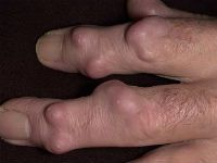 Гигромы на пальцах руки