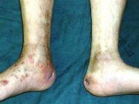 Хронический остеомиелит