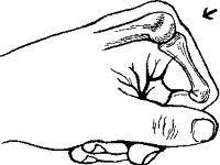 Сустав пальца