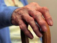 Деформация суставов кисти рук при ревматоидном артрите