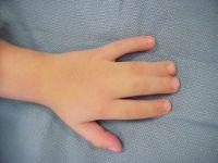 Сросшиеся пальцы