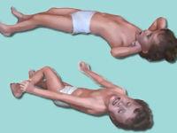 Судороги у ребенка