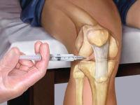 Укол в колено