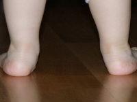 Кривые детские ножки