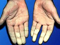 Руки с белыми пальцами