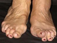Деформация пальцев на ногах